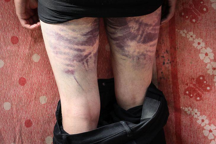 Érthetetlen kegyetlenség  – brutális erőszak érhette a belorusz tüntetőket