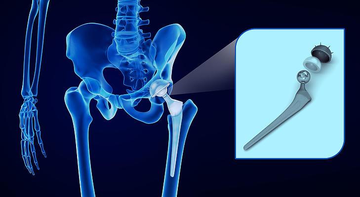 A csípőprotézis műtétre várók listája a harmadik legnagyobb. Fotó: Depositphotos