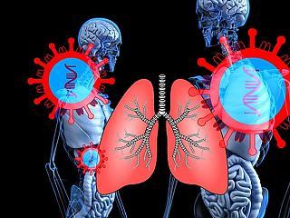 Talán ezt a vírustagadók is elhiszik: így néz ki a kornavírussal fertőzött tüdő