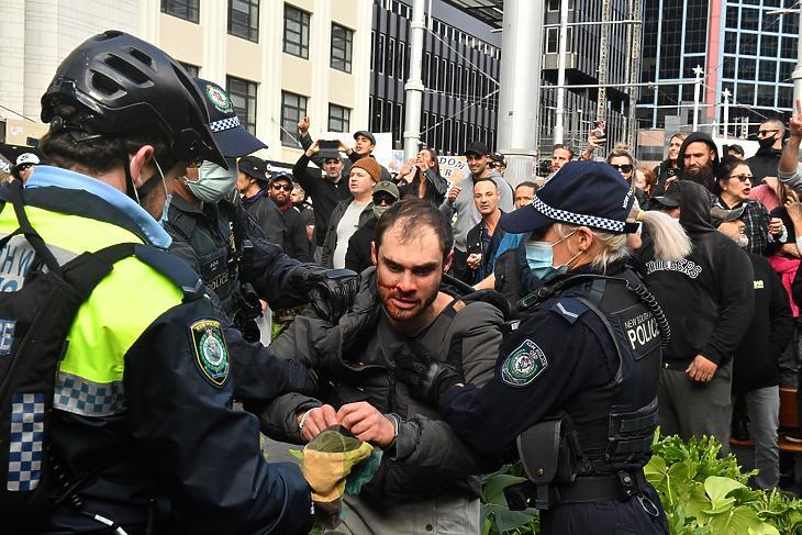 A koronavírus-járvány miatt elrendelt korlátozások ellen tüntetőt vesznek őrizetbe az ausztráliai Sydneyben 2021. július 24-én. (Fotó: MTI/EPA/AAP/Mick Tsikas)
