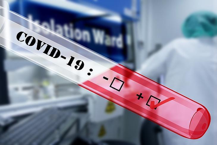 Hatósági árasítja a magán koronavírus teszteket az állam. Fotó: Pixabay